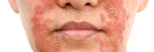 psoriasis du visage